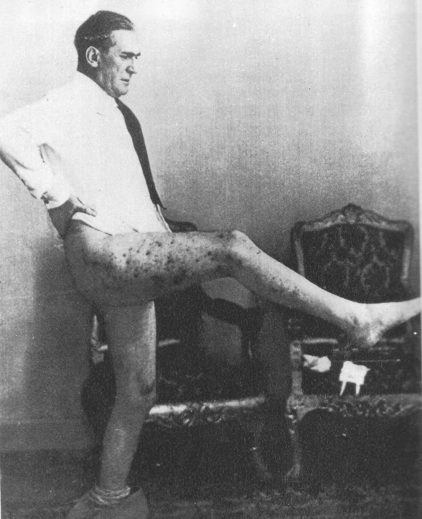 Viceroy Rodolfo Graziani showing his leg injuries caused by grenade fragments.